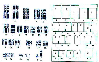 先天智力障碍男性患者的染色体组型图解